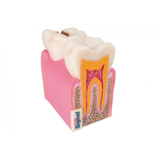 Anatomical model of tooth / Tandmodell